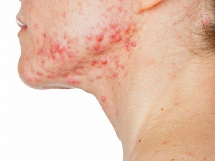 Acne, Dermatitis, Eczema, Rosacea and Skin Issues